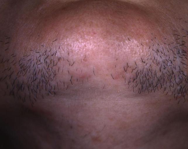 Epilazione laser viso