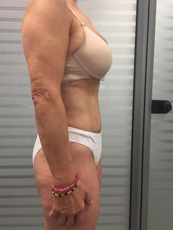 Addominoplastica Donna Torino