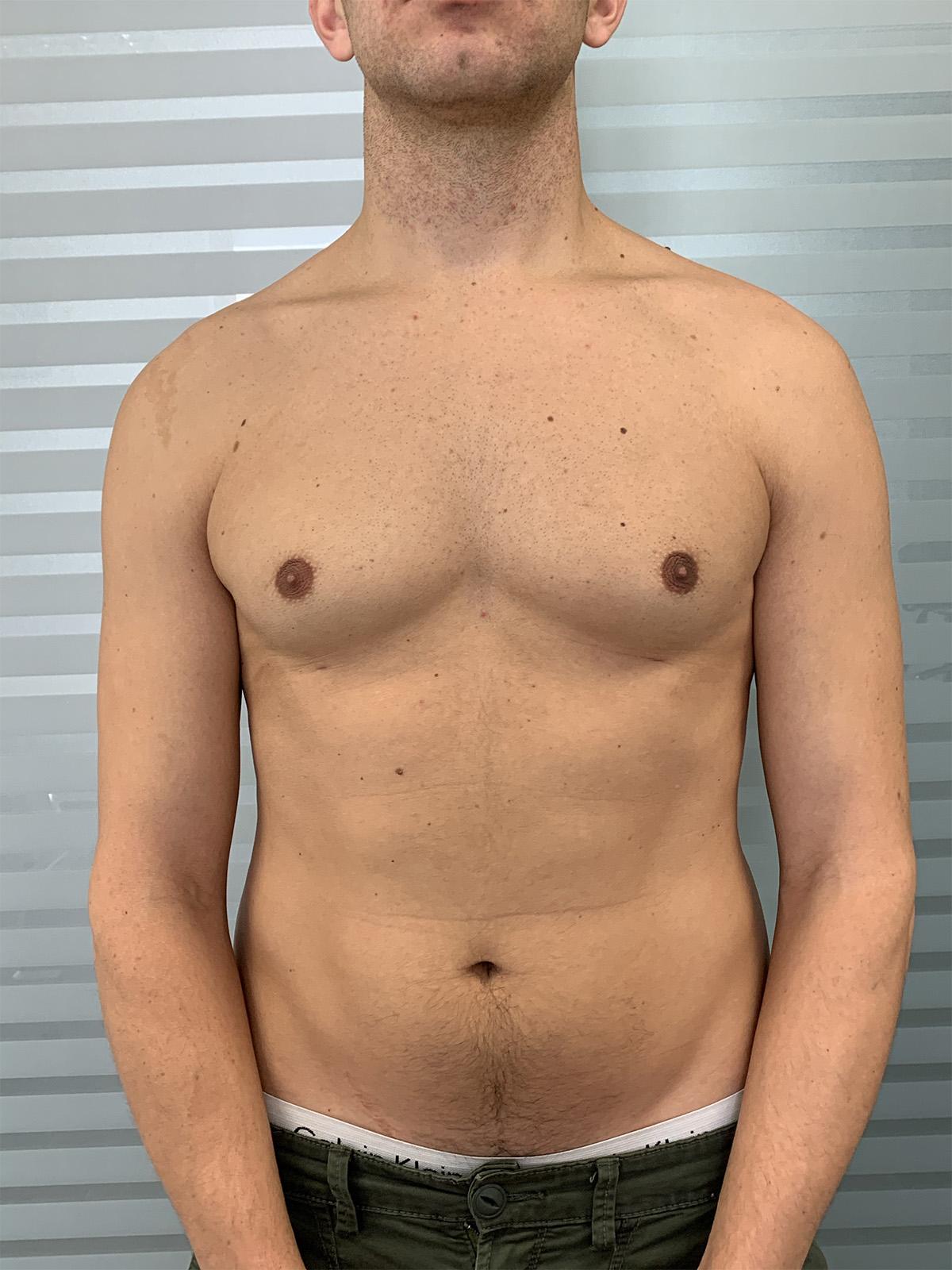 Risultati dopo l'intervento di Ginecomastia - Dott. Fabrizio Obbialero