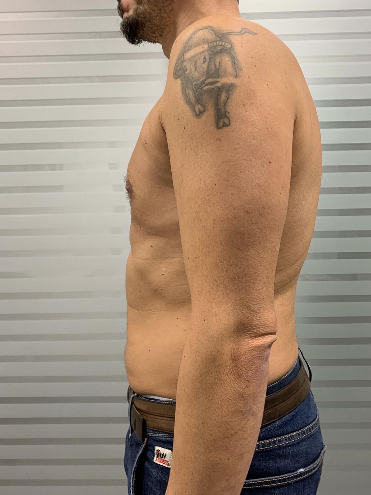 Ginecomastia Uomo - Dott. Obbialero Chirurgo Plastico a Torino